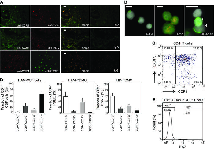 HTLV-1–infected Th1-like CCR4+ cells invade the CNS of HAM/TSP patients....