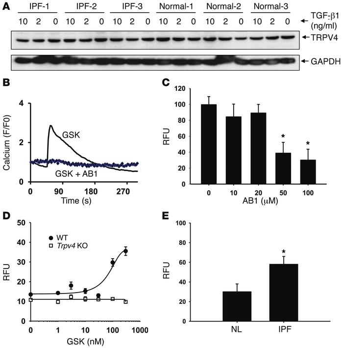 TRPV4 calcium channel is expressed and functional in HLFs and murine lun...