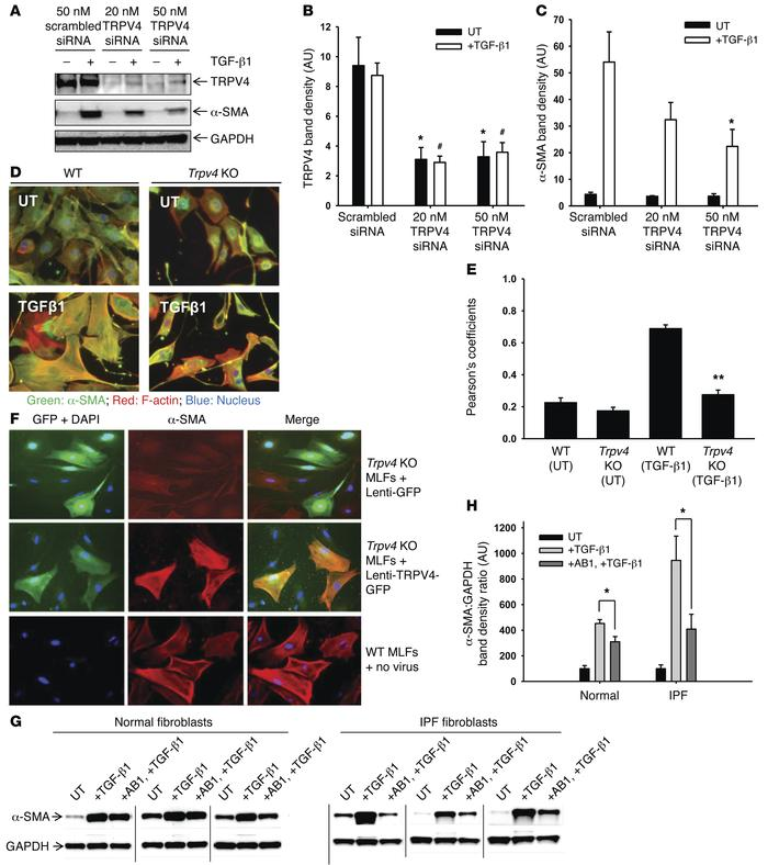 TRPV4 is required for TGF-β1–induced lung myofibroblast differentiation....
