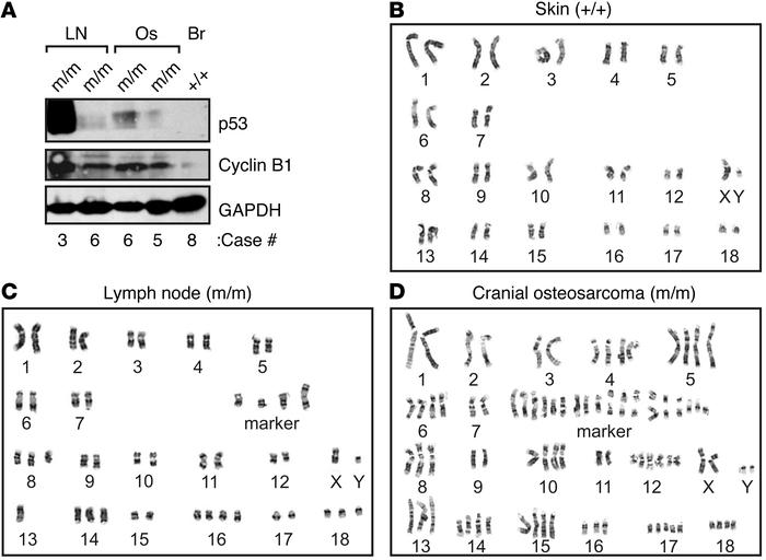 Molecular changes and cytogenetic abnormalities in TP53R167H/R167H pig t...