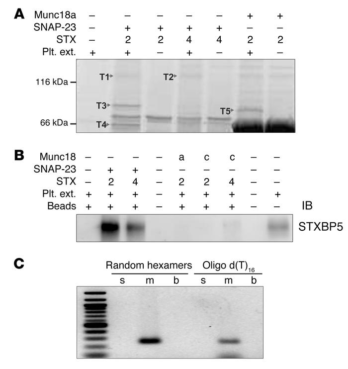 STXBP5 is present in human platelets. (A) The indicated complexes were p...