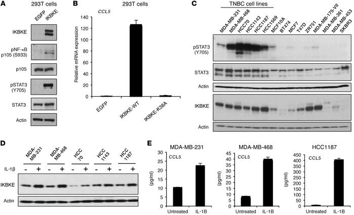 IKBKE promotes inflammatory signaling and is induced by IL-1 in TNBC cel...