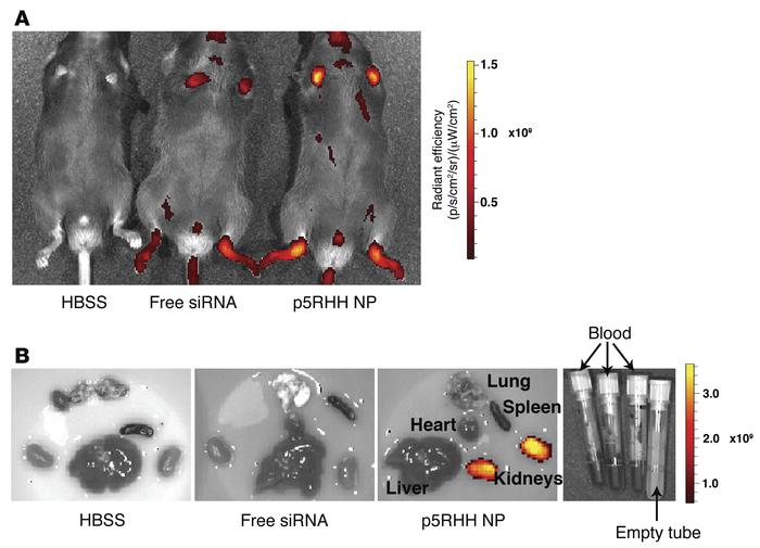 p5RHH siRNA nanoparticles accumulate in inflamed paws. Day 4 arthritic m...