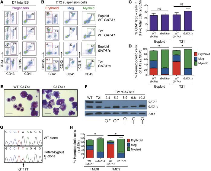 GATA1s mutations inhibit erythropoiesis from patient-derived iPSCs. (A)...