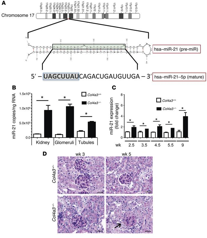 miR-21 upregulation in Alport nephropathy precedes histological changes ...