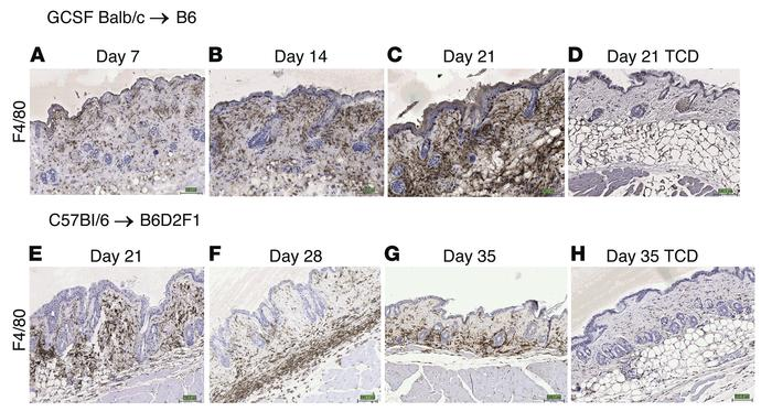 F4/80+ macrophages infiltrate the skin of mice receiving either mobilize...