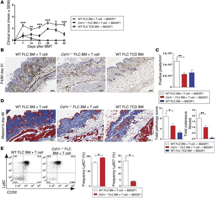 F4/80+ macrophage infiltration and cutaneous fibrosis following BMT are ...