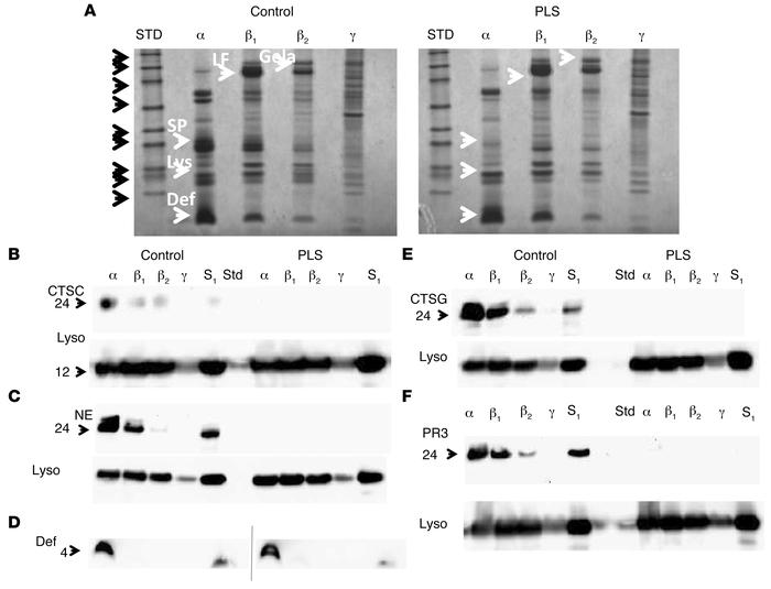 Deficiency of cathepsin C and serine proteases in PLS neutrophils. (A) C...