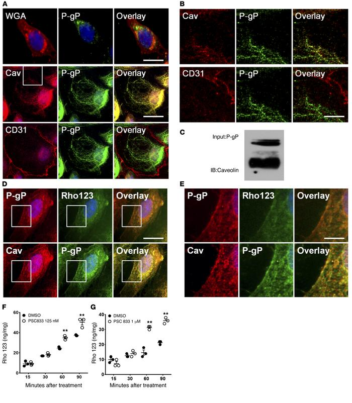 P-gp is expressed mostly in the cytoplasm of human brain endothelial cel...
