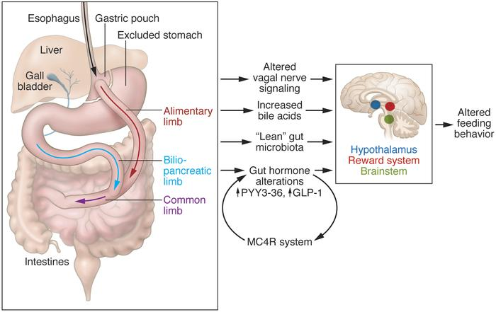 Jci Roux En Y Gastric Bypass Effects On Feeding Behavior And