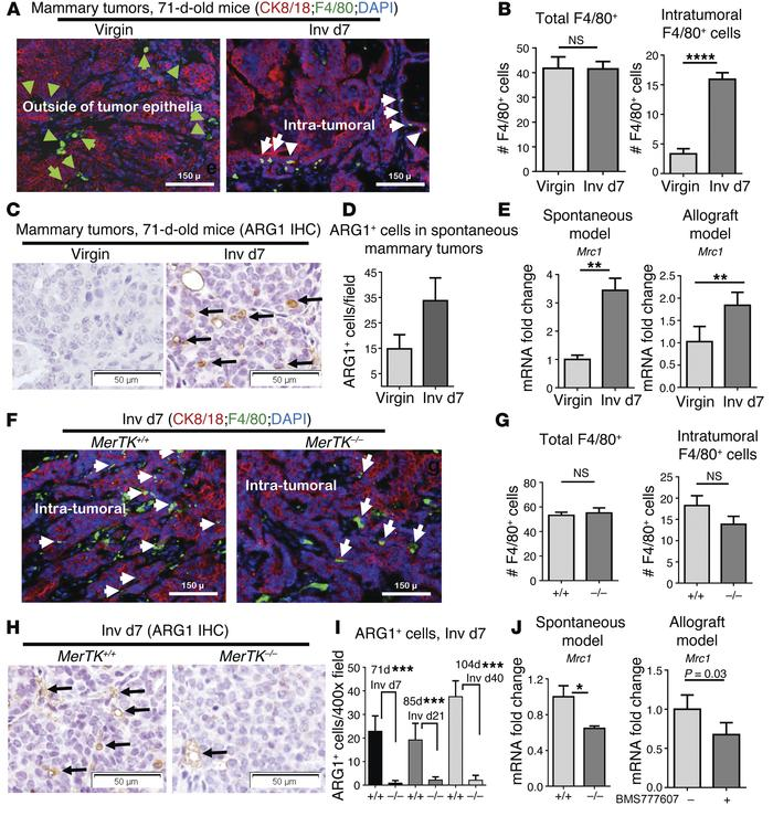 M2 polarization of postpartum tumor–associated macrophages requires MerT...