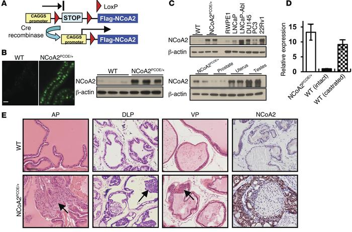 Oncogenic role of NCoA2 in PIN. (A) Scheme of conditional overexpression...