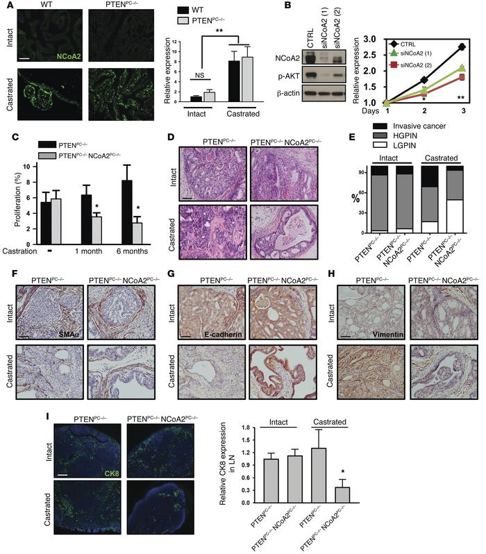 Upregulation of NCoA2 during androgen deprivation is critical in metasta...