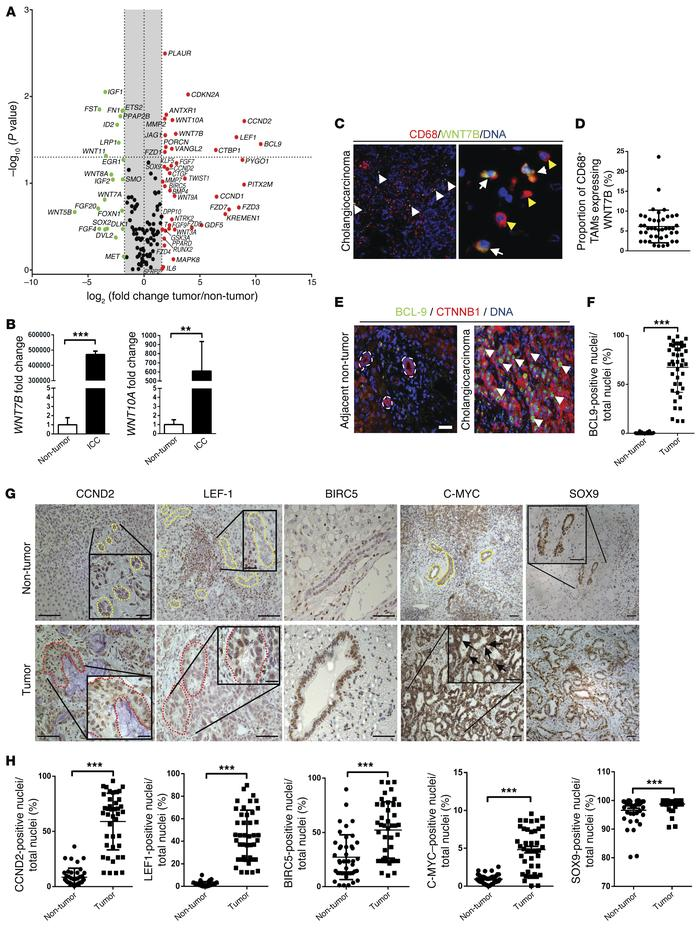 Canonical WNT signaling is activated in human CC. (A) mRNA expression of...