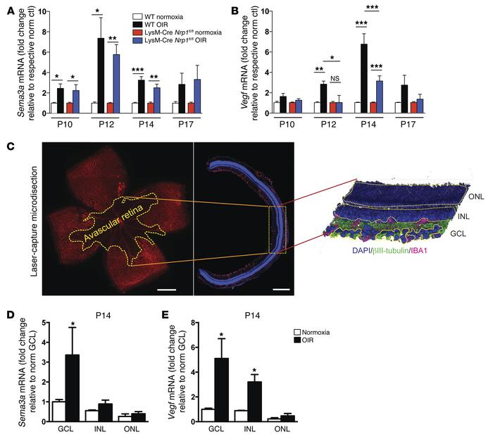 Ligands of NRP-1 are induced in the retinal ganglion cell layer during O...
