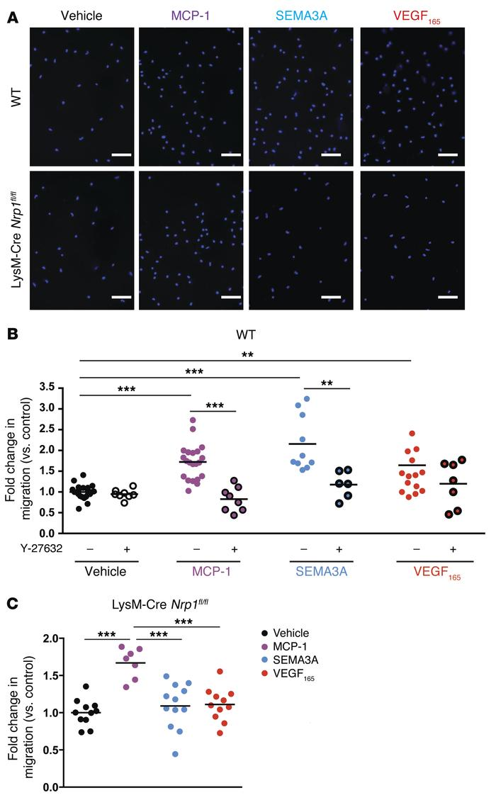SEMA3A and VEGF are chemoattractive toward macrophages via NRP-1. Primar...