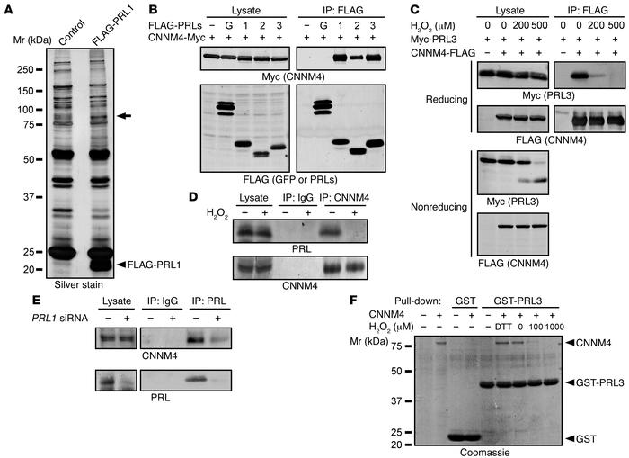 Identification of CNNM4 as a PRL-interacting protein. (A) Lysates of SW4...