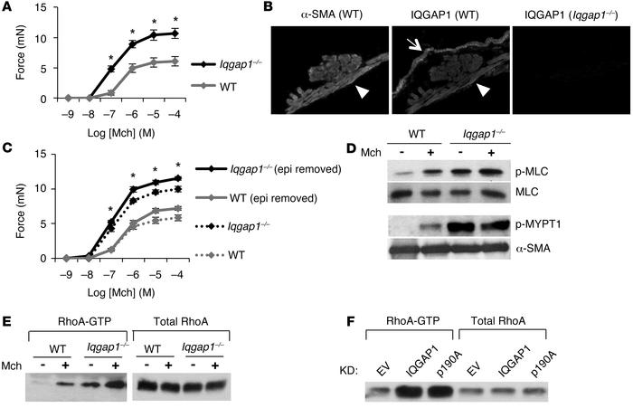 IQGAP1 suppresses airway smooth muscle contraction. (A) Force of contrac...