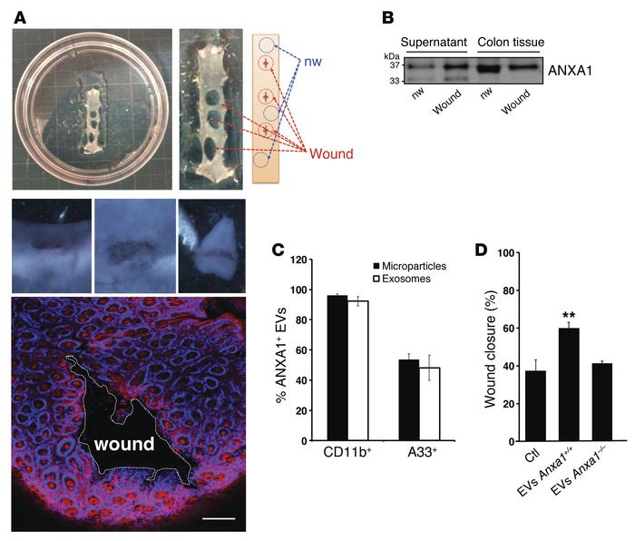 Analysis of ANXA1-containing EVs in ex vivo cultures of resealing mucosa...