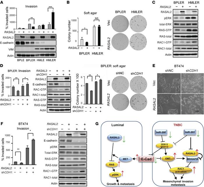 The context-dependent role of RASAL2 in breast cancer is dependent on EM...
