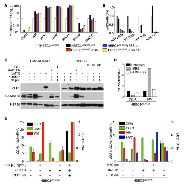 Genetic (MYC) and microenvironmental (TGF-β) oncogenic cues can induce Z...
