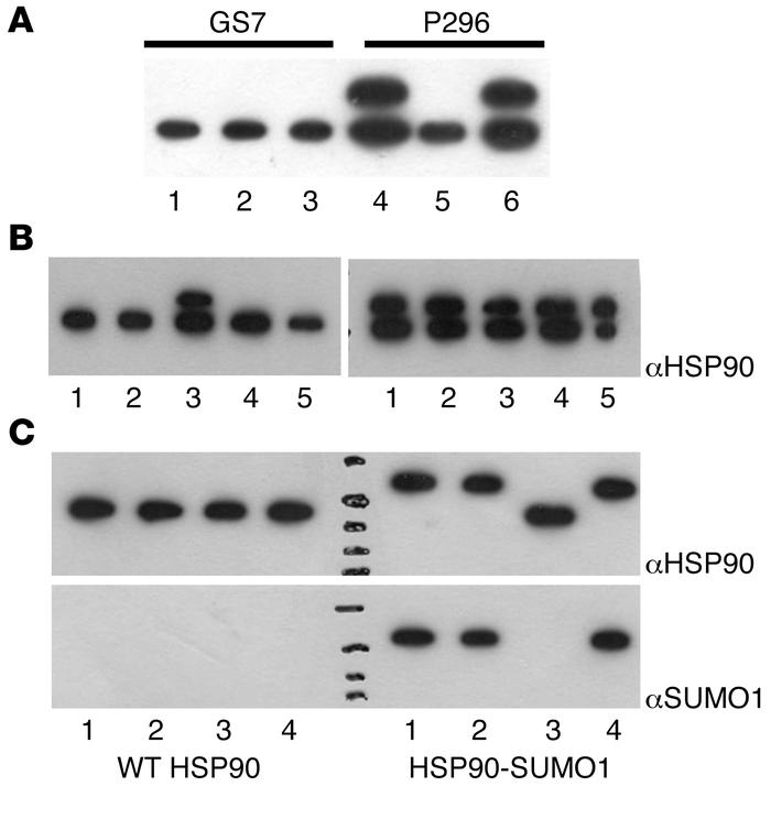 Regulation of HSP90-SUMO1 in patients. (A) Complementation assay. Native...