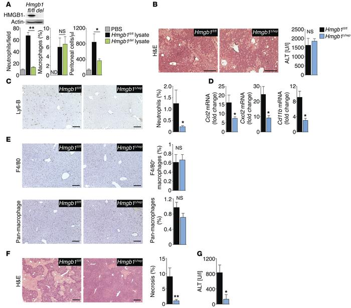 HMGB1 promotes neutrophil recruitment in vitro and in vivo. (A) Neutroph...