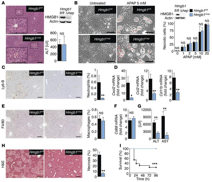 HMGB1 mediates neutrophil recruitment, injury amplification, and        ...