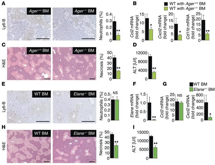 RAGE-expressing neutrophils promote injury amplification after necrotic ...