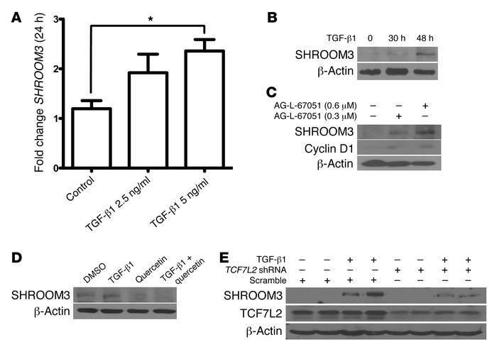 TGF-β1 increases SHROOM3 in a β-catenin/TCF7L2–dependent manner. (A) SHR...