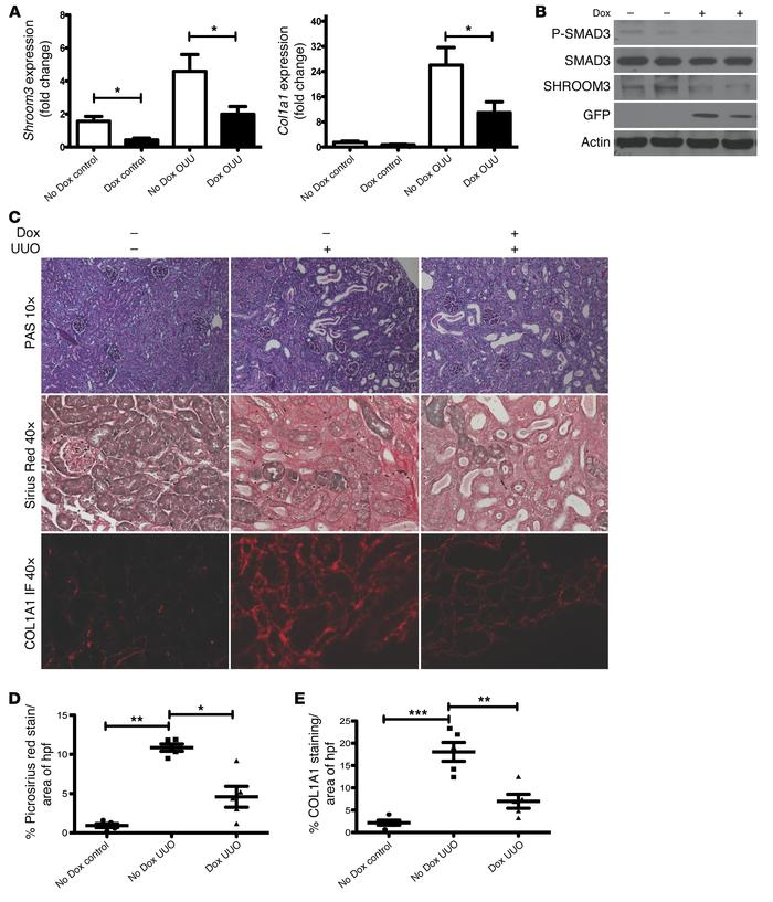 Shroom3 knockdown in vivo inhibits canonical TGF-β1/SMAD3 signaling and ...