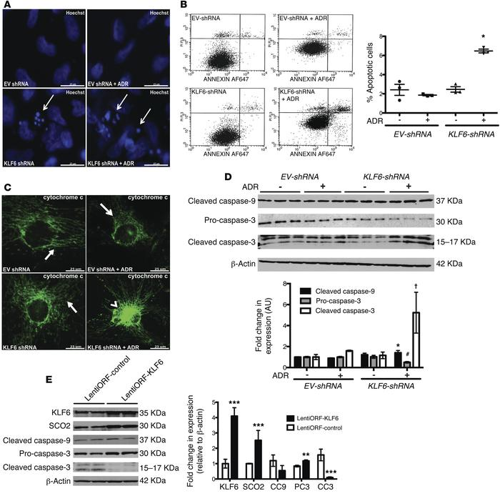 shRNA-mediated KLF6 knockdown resulted in activation of the intrinsic ap...