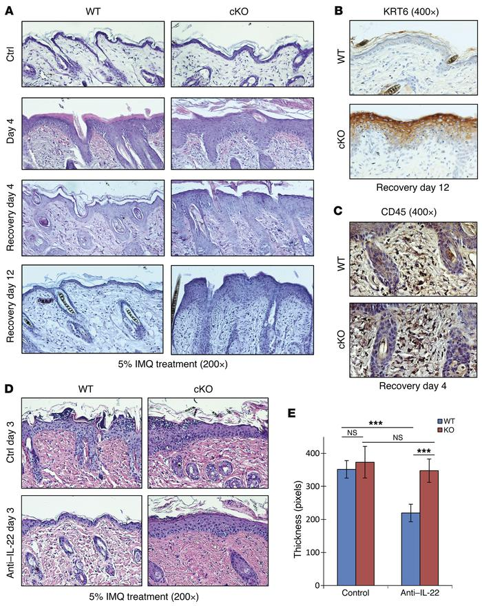 Grhl3 is required for healing of immune-mediated epidermal lesions. (A) ...