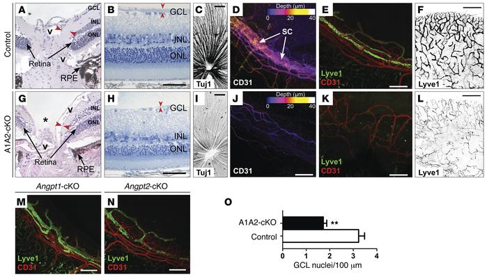 A1A2FloxWBΔE16.5-cKO mice develop glaucoma due to defects in ocular drai...