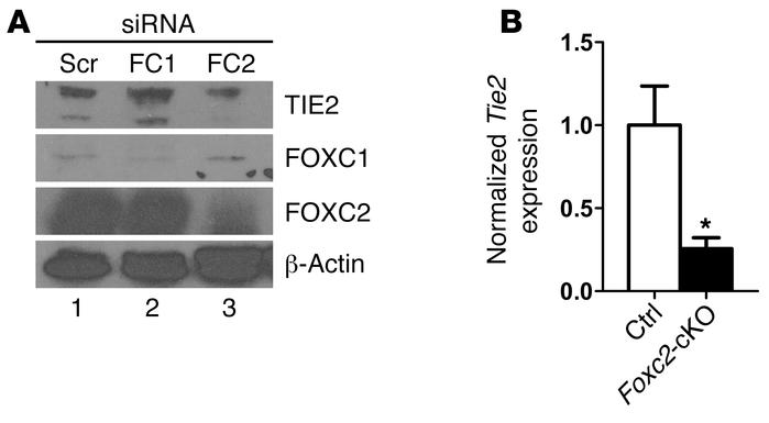 FOXC2 regulates TIE2 expression in the lymphatic endothelium. (A) Human ...