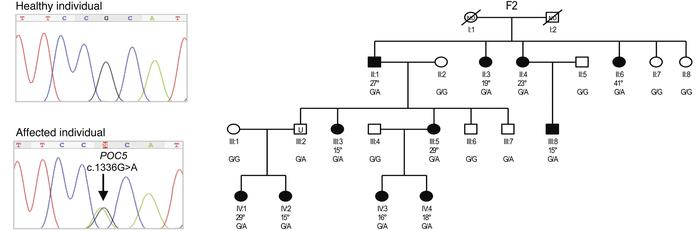 Identification of a rare POC5 SNV in family F2. Exome sequencing identif...