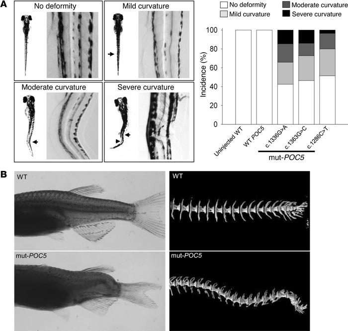 Expression of human POC5 SNVs leads to scoliosis in zebrafish. Zebrafish...