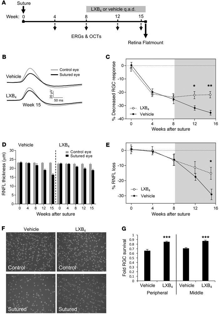 Therapeutic LXB4 protects RGC function and survival following glaucomato...