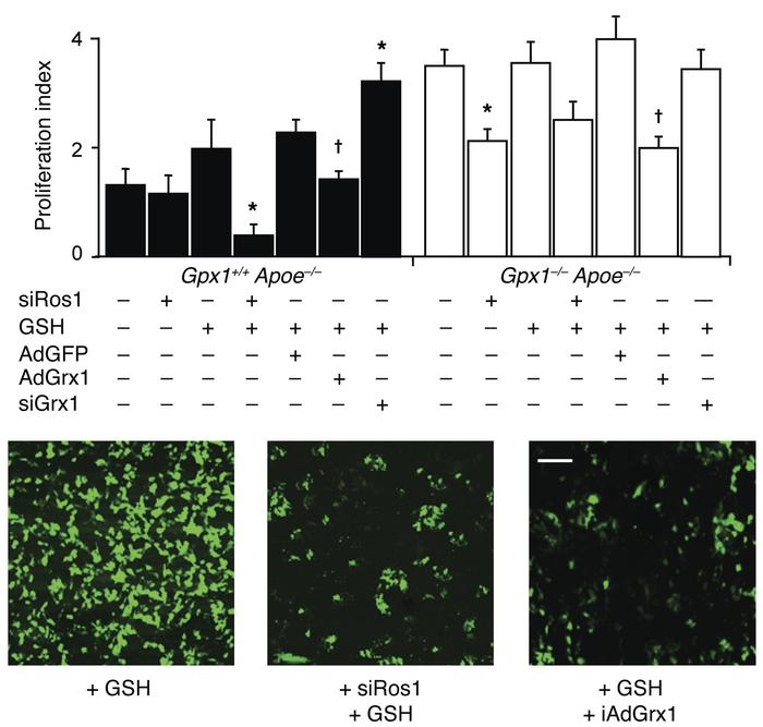 Gpx1 deletion–dependent reductive stress activates ROS1 and regulates pr...