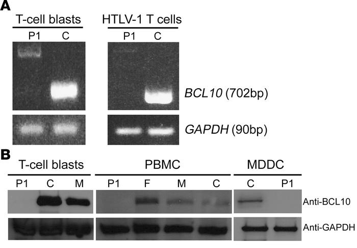 BCL10 levels in P1. (A) BCL10 mRNA levels in T cell blasts and HTLV-1 T ...