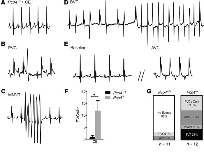Pcp4-null mice are prone to ventricular arrhythmias and aberrant ventric...
