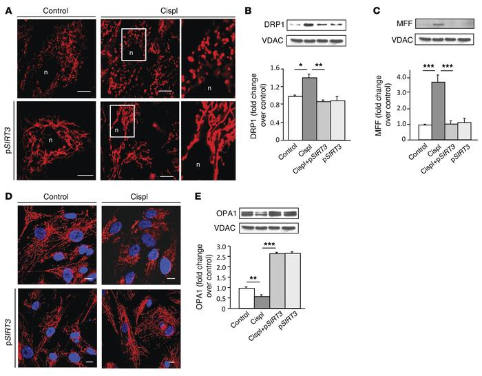 SIRT3 counteracts cisplatin-induced mitochondrial dynamic perturbation i...