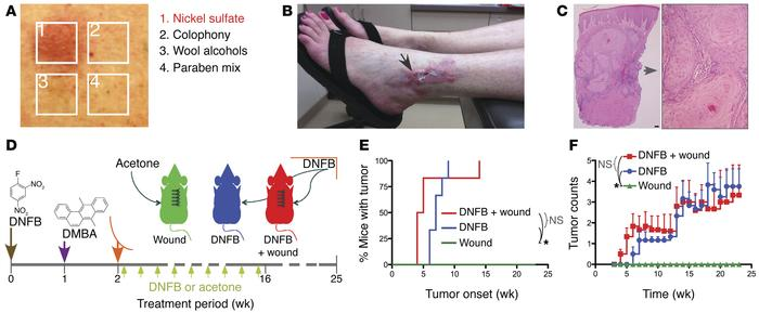Chronic ACD promotes skin tumorigenesis. (A–C) Clinical case of an invas...