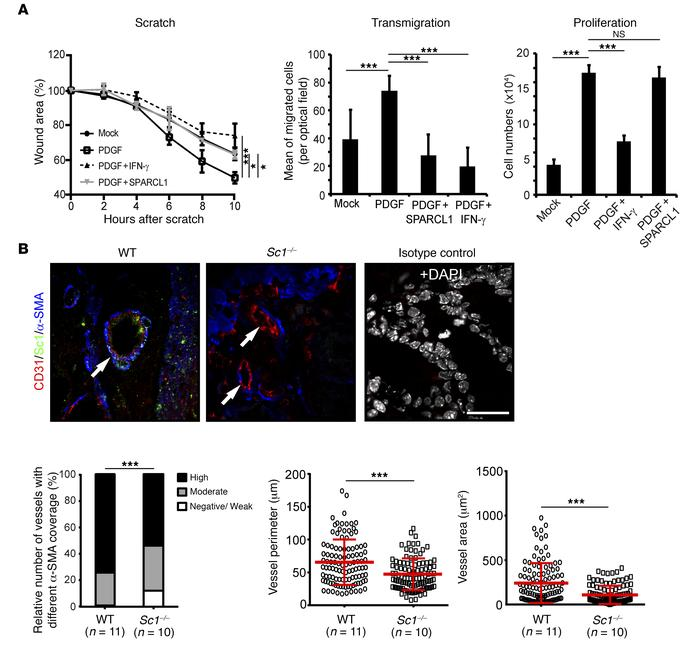 SPARCL1 regulates vessel maturation. (A) Primary human SMCs were treated...