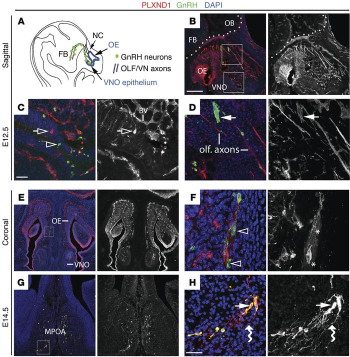 PLXND1 is expressed during GnRH neuron migration in the mouse. (A) Schem...