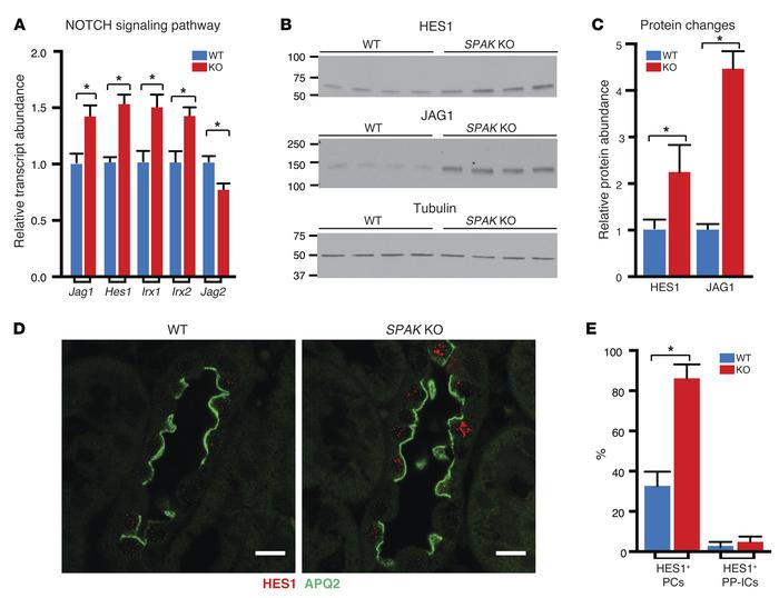 NOTCH signaling is induced in SPAK KO mice. (A) qPCR of NOTCH signaling ...