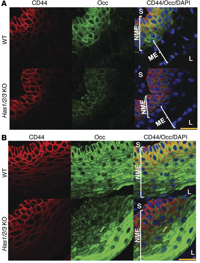 HA depletion diminishes occludin expression in CD44+ epithelia. (A) CD44...