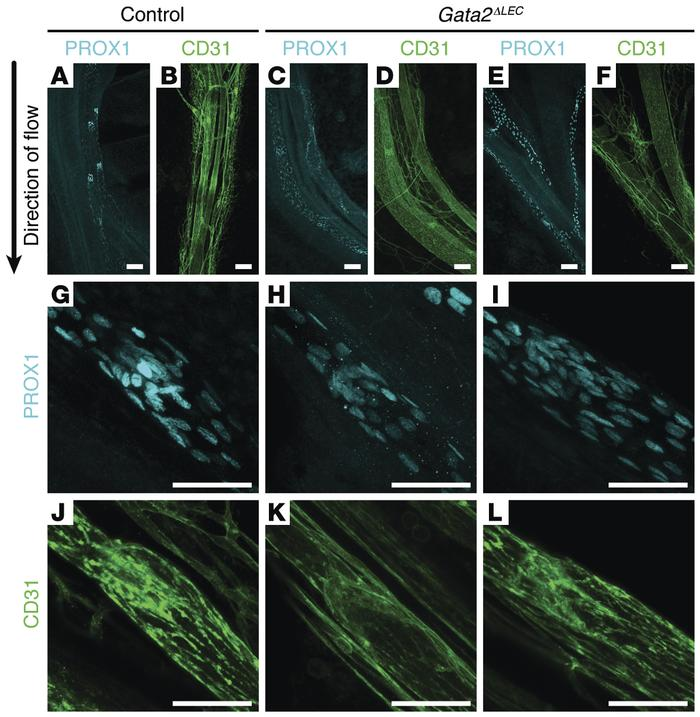 Gata2 is required for lymphatic vessel valve maintenance. Gata2ΔLEC and...