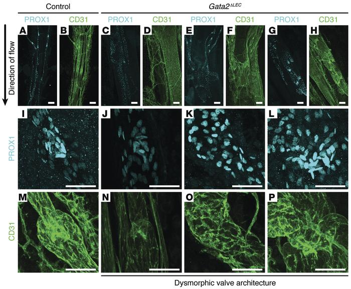Gata2 deletion results in degeneration of lymphatic vessel valves and l...