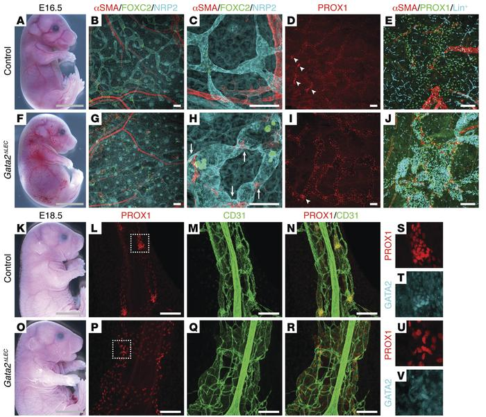 Lymphatic vessel valve development is perturbed in Gata2ΔLEC embryos. Pr...